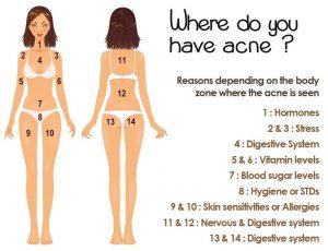waar komt acne voor