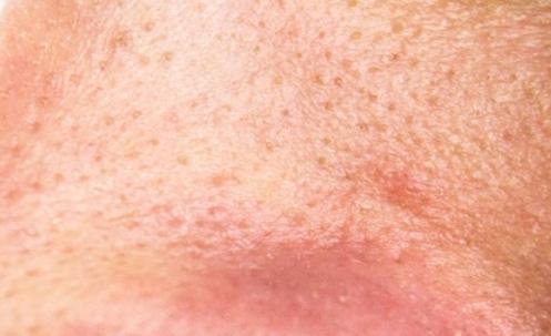 gaatje in huid